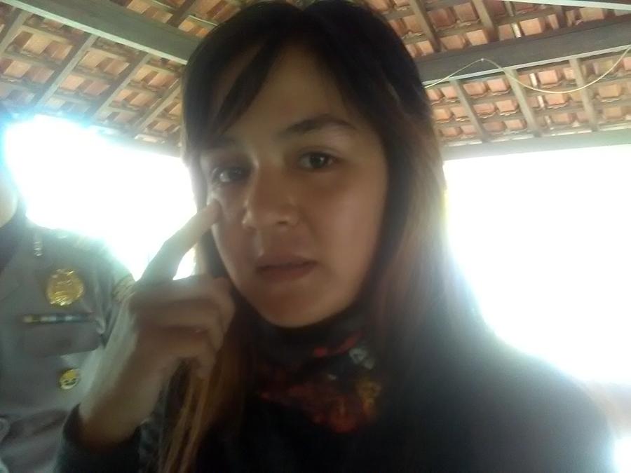 Chairunnisa alias Chaca, menunjukkan bekas KDRT yang diduga dilakukan suaminya, Andika Kangen Band. (Foto: Lampungnews.com/Adam).