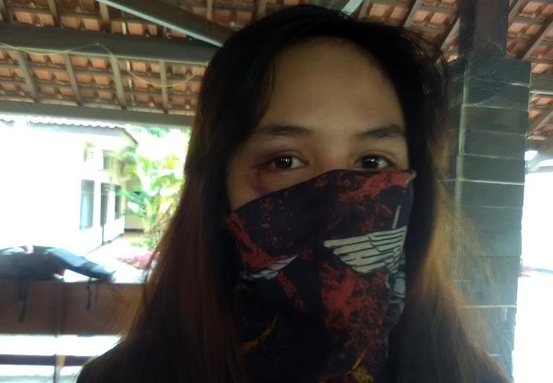 Chairunnisa alias Chaca (22), istri Andika Kangen Band, memperlihatkan bekas luka di bagian kanan bawah matanya. (Foto Lampungnews.com/Adam)