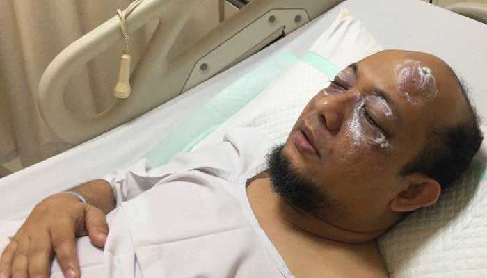 Foto Novel Baswedan dirawat di rumah sakit yang beredar di media sosial. (Lamopungnews)
